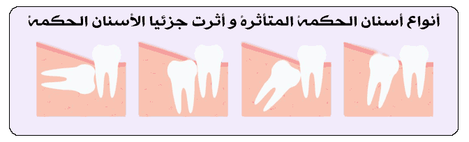 استخراج الأسنان الحکمة + [تکلفة جراحة الأسنان الحکمة فی إیران]
